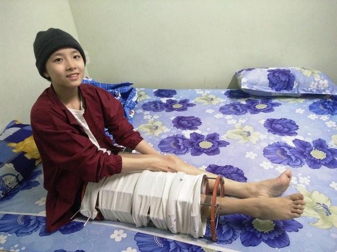 Mẹ vừa mới mất, người cha đau đớn nhìn con gái 15 tuổi mắc bệnh ung thư xương ác tính mà không tiền chữa trị - Ảnh 7.