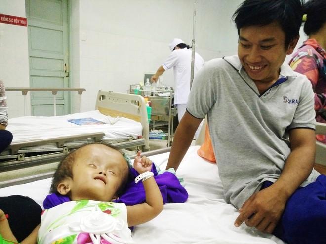 Xót cảnh bé gái 4 tuổi bị não úng thủy, đầu to gấp ba lần người thường mà bố mẹ nghèo không tiền chạy chữa - Ảnh 6.
