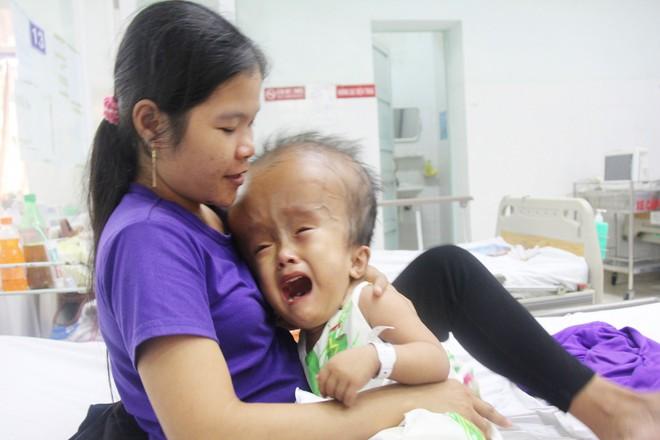 Xót cảnh bé gái 4 tuổi bị não úng thủy, đầu to gấp ba lần người thường mà bố mẹ nghèo không tiền chạy chữa - Ảnh 3.