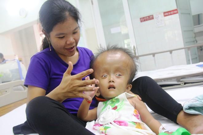 Xót cảnh bé gái 4 tuổi bị não úng thủy, đầu to gấp ba lần người thường mà bố mẹ nghèo không tiền chạy chữa - Ảnh 4.