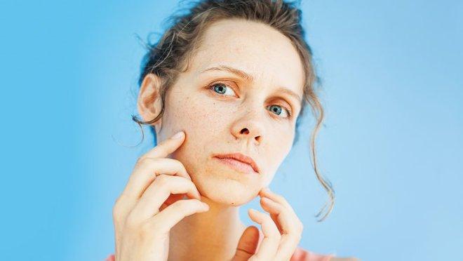 Điều gì thực sự xảy ra với da mặt khi bạn đi ngủ không tẩy trang - Ảnh 5.