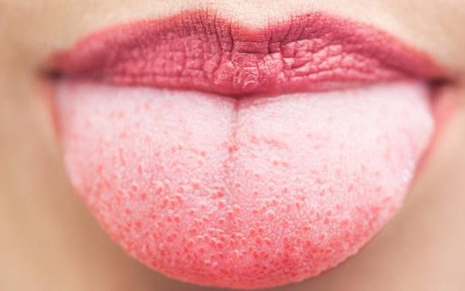Những nguyên nhân gây nên hiện tượng lưỡi trắng - hóa ra có cả nguyên nhân nguy hiểm không ngờ - Ảnh 1.