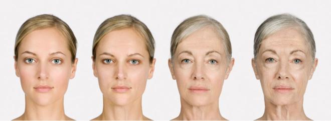 5 điều cần phải xác định trước khi quyết định tiêm botox căng da - Ảnh 4.
