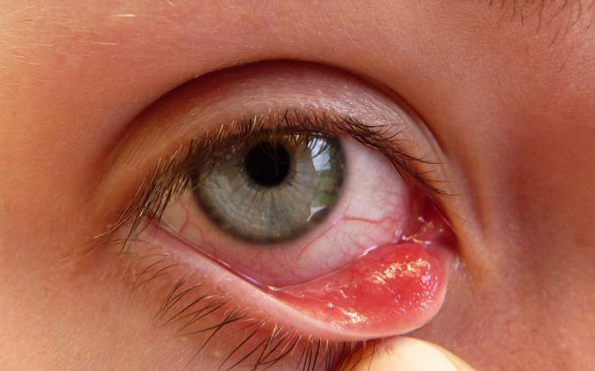 8 dấu hiệu cho thấy đôi mắt bạn gặp vấn đề nên cần đi khám ngay - Ảnh 4.