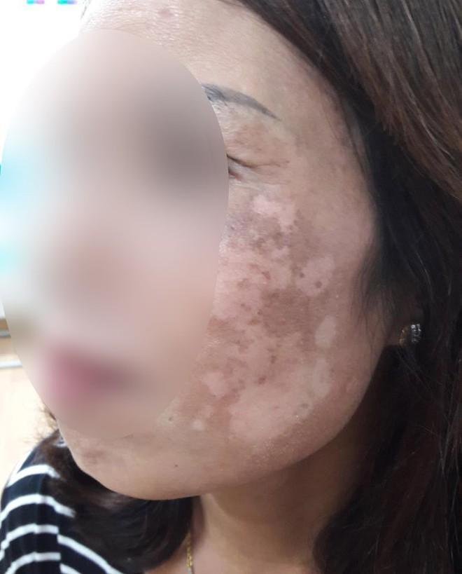 Hà Nội: Dùng kem trộn, một phụ nữ bị lột sạch da mặt, mất hàng trăm triệu điều trị nhưng chỉ phục hồi được 30-40% - Ảnh 1.