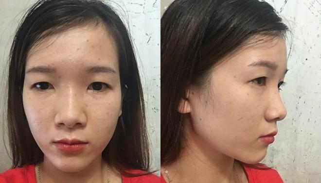 Cô gái mắt lươn từng bị ngăn cấm tình yêu, đuổi việc vì nhìn gian manh lột xác ngoạn mục sau phẫu thuật thẩm mỹ - Ảnh 2.