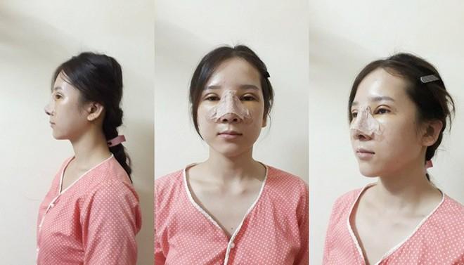 Cô gái mắt lươn từng bị ngăn cấm tình yêu, đuổi việc vì nhìn gian manh lột xác ngoạn mục sau phẫu thuật thẩm mỹ - Ảnh 7.