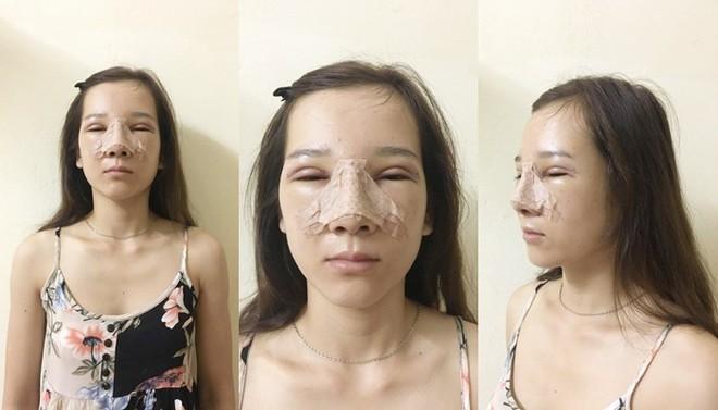 Cô gái mắt lươn từng bị ngăn cấm tình yêu, đuổi việc vì nhìn gian manh lột xác ngoạn mục sau phẫu thuật thẩm mỹ - Ảnh 6.
