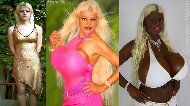 Chán màu da trắng, người phụ nữ có bộ ngực khủng nhất châu Âu chi cả đống tiền để sở hữu làn da đen đằm thắm - Ảnh 7.