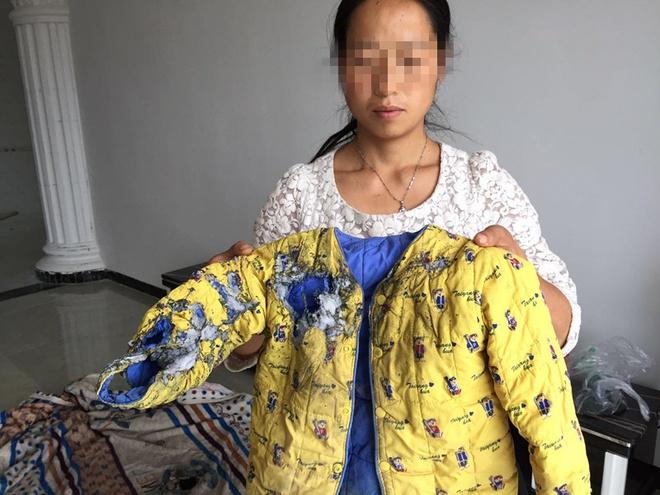 Bé gái 5 tuổi bị bỏng vì điện thoại phát nổ trong lúc ngủ, công ty điện thoại phớt lờ - Ảnh 1.