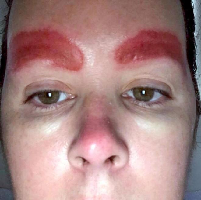 Tưởng xăm cho đẹp, người phụ nữ đâu ngờ nhan sắc bị hủy hoại vì mảng da chân mày sưng đỏ và bong ra - Ảnh 6.