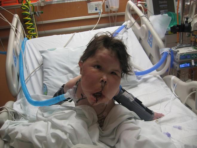 Mắc bệnh hiếm cả bác sĩ cũng chưa đặt tên, bé gái 9 tuổi mang gương mặt khổng lồ biến dạng - Ảnh 2.