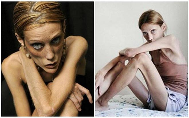 Sự thật trần trụi phía sau thân hình mảnh mai của người mẫu: Nhịn ăn, tiêm thuốc, rửa ruột hàng ngày - Ảnh 6.