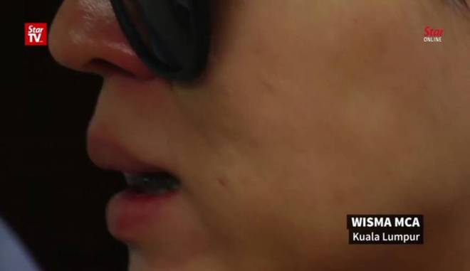 Bỏ ra hàng nghìn đô để phẫu thuật căng da mặt bằng chỉ vàng, người phụ nữ không ngờ tiền mất tật mang - Ảnh 2.