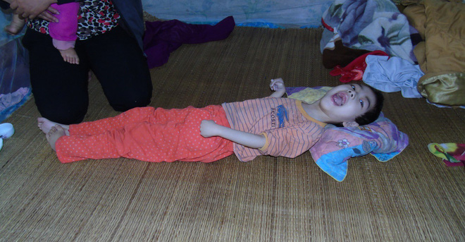 Mỗi ngày buộc phải cho con uống 12 viên thuốc ngủ, người mẹ đau đớn chứng kiến con ngày càng héo úa - Ảnh 1.