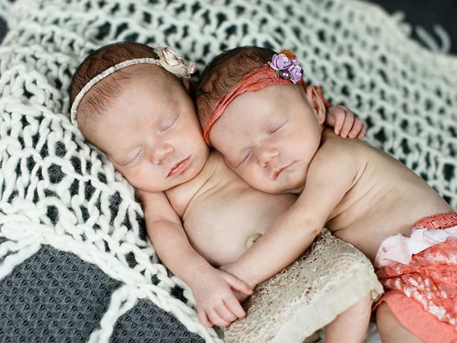 Bức ảnh về cặp song sinh cực hiếm chào đời nổi như cồn trên mạng vì một lý do thật tuyệt vời - Ảnh 1.