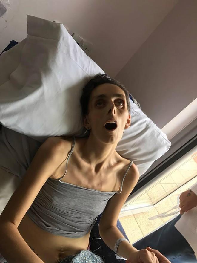 Chồng đau đớn chia sẻ bức ảnh gây sốc của vợ trên giường bệnh và lời cảnh báo mà bạn không nên bỏ qua - Ảnh 3.