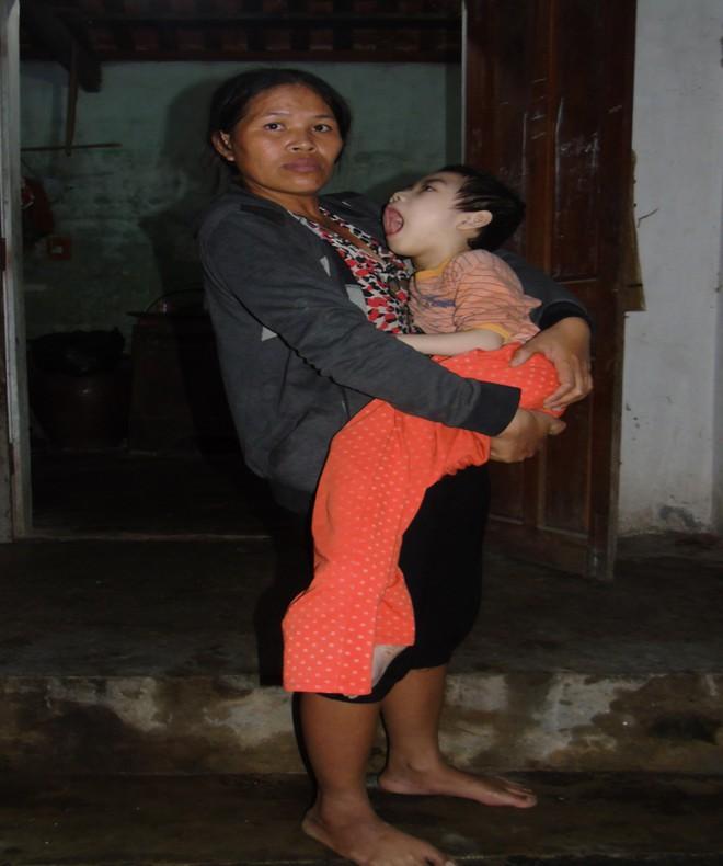 Mỗi ngày buộc phải cho con uống 12 viên thuốc ngủ, người mẹ đau đớn chứng kiến con ngày càng héo úa - Ảnh 3.