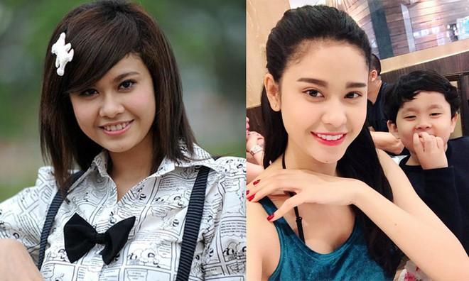 Cặp đôi thị phi Tim - Trương Quỳnh Anh: Đã thẩm mỹ là phải làm cả đôi cùng lúc - Ảnh 2.