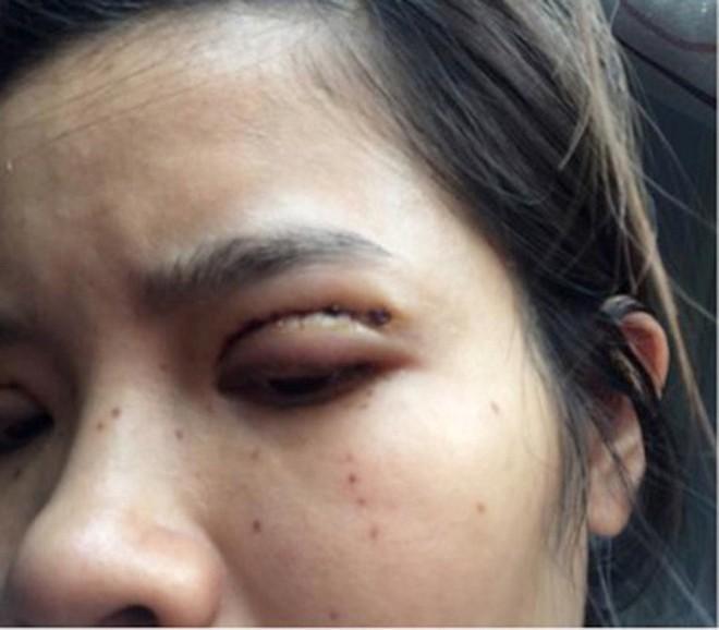 Là tiểu phẫu nhưng cắt mí hay bóc mỡ bọng mắt cũng có thể gây ra những hậu quả nhìn kinh khủng như thế này - Ảnh 9.
