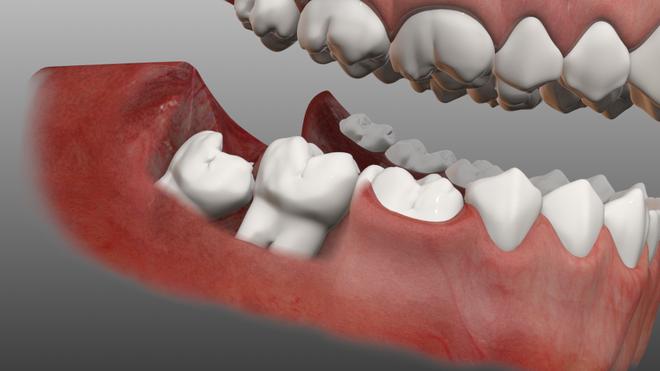 Những biện pháp hạn chế cơn đau do răng khôn - Ảnh 1.