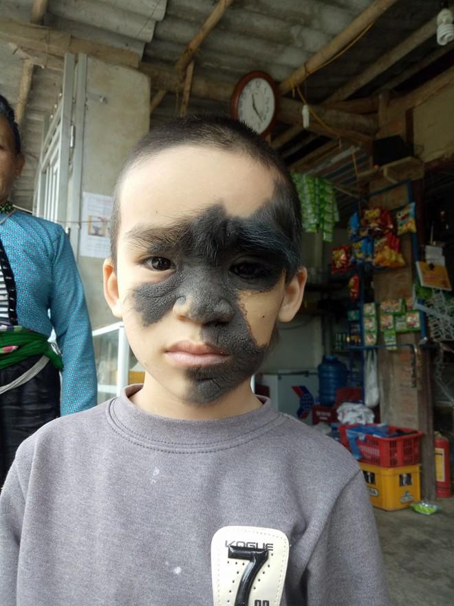 Xót thương bé trai 6 tuổi bị nổi u khắp mặt tựa người rừng từ khi mới chào đời - Ảnh 4.