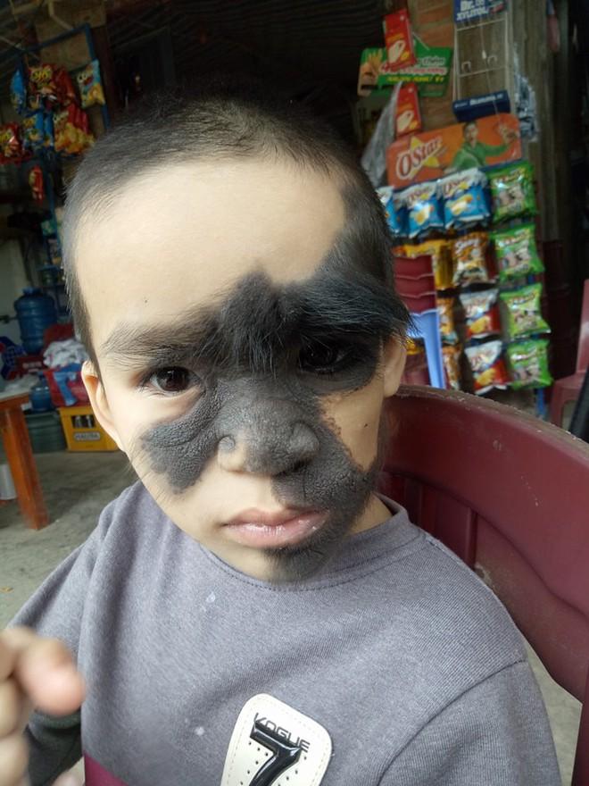 Xót thương bé trai 6 tuổi bị nổi u khắp mặt tựa người rừng từ khi mới chào đời - Ảnh 2.
