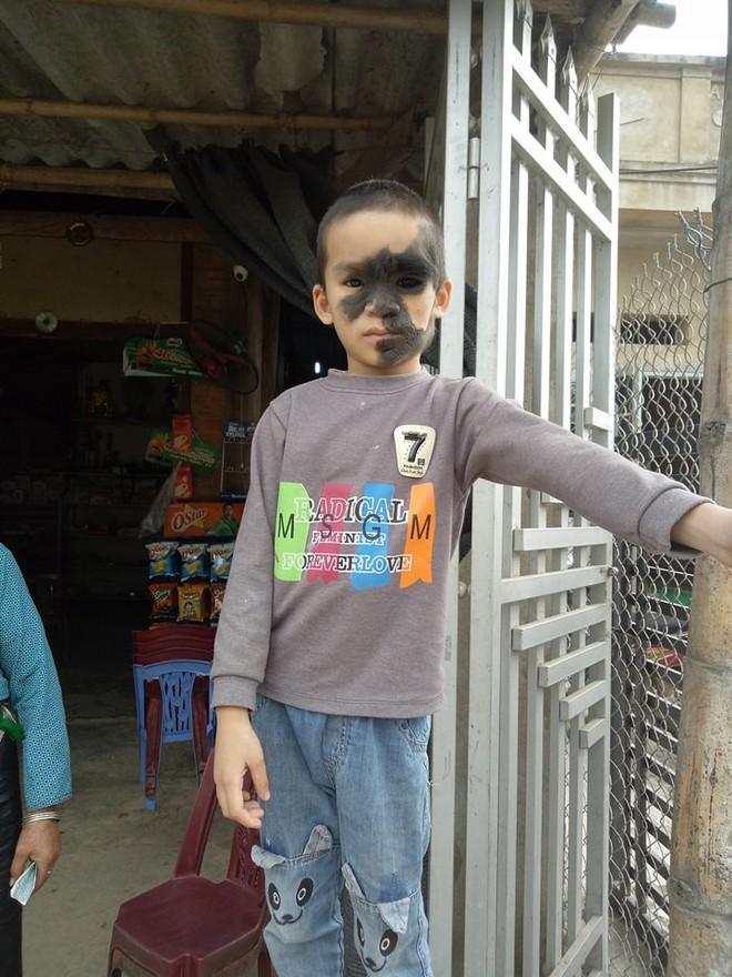 Xót thương bé trai 6 tuổi bị nổi u khắp mặt tựa người rừng từ khi mới chào đời - Ảnh 3.