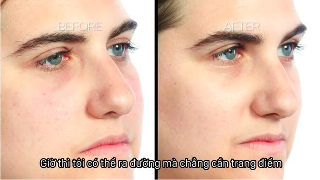 6 cô nàng thử nghiệm tiêm thẩm mỹ để làm giảm quầng thâm dưới mắt, và đây là kết quả giật mình - Ảnh 4.