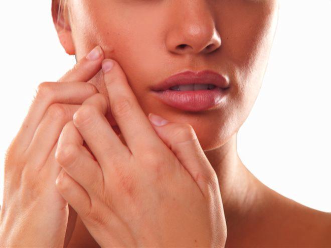 6 sai lầm khi trị mụn trứng cá khiến mụn mọc nhiều hơn và hủy hoại làn da bạn nhanh chóng - Ảnh 2.