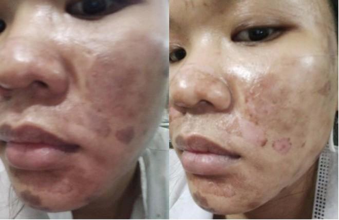 Làm đẹp dại cô nàng xinh đẹp rước hại vào thân: da bỏng hoàn toàn, vướng tin đồn giật chồng nên bị tạt axit - Ảnh 5.