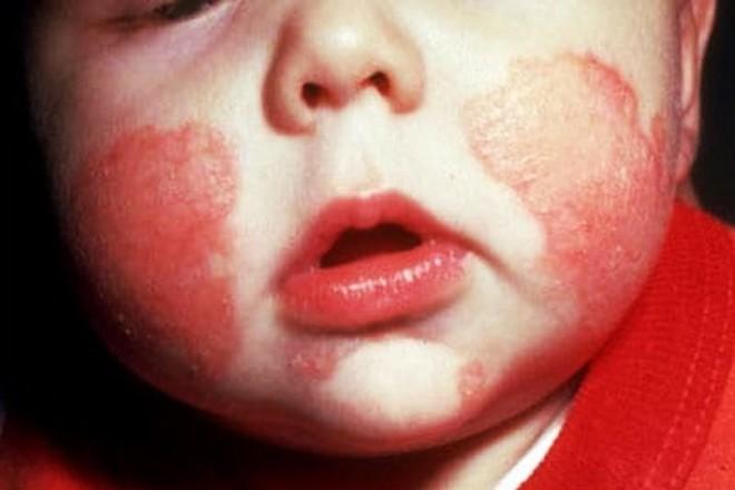Những tưởng con mắc 4 chứng bệnh về da nhưng sau cùng mẹ thở phào vì bé chỉ bị loại mụn nhẹ này thôi - Ảnh 3.