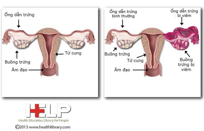 Căn bệnh nhiễm trùng không có triệu chứng rõ ràng này hoàn toàn có thể khiến bạn bị vô sinh - Ảnh 3.
