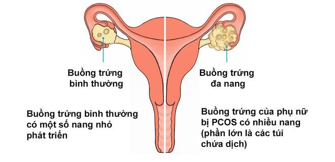 Dấu hiệu cảnh báo bạn đang bị cả hội chứng buồng trứng đa nang và lạc nội mạc tử cung khiến việc có thai càng mù mịt - Ảnh 4.