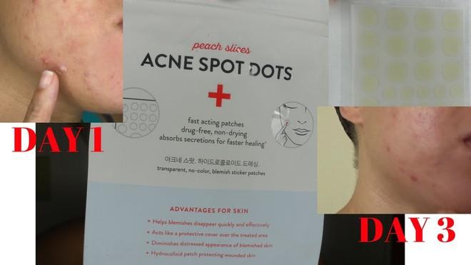 10 sản phẩm đặc trị khiến vết mụn cứng đầu nhất cũng phải chịu thua - Ảnh 23.