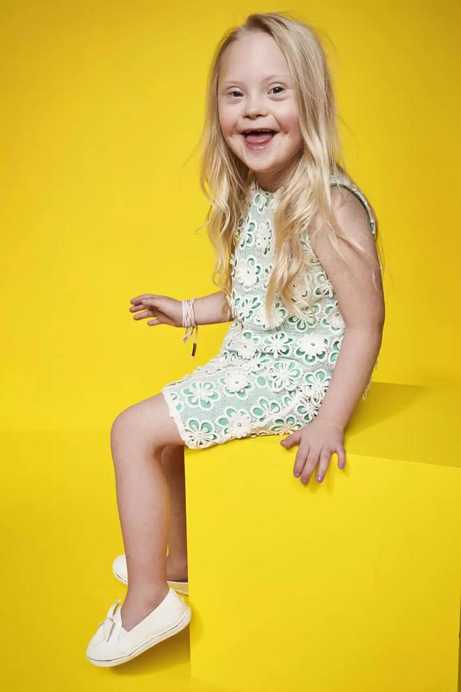 Trẻ em khuyết tật trở thành người mẫu chuyên nghiệp trong chiến dịch mới của thương hiệu thời trang - Ảnh 2.