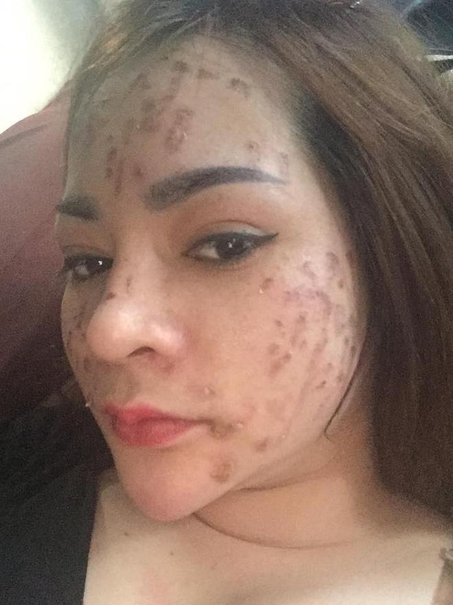 Nghe lời nhân viên spa chấm nám cho đẹp da, cô gái trẻ bị thui cháy loang lổ cả mặt - Ảnh 3.
