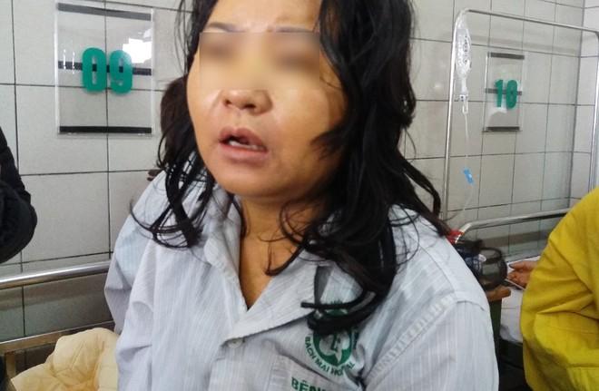 Một phụ nữ nguy kịch, xơ gan nghi do sử dụng thực phẩm chức năng để giảm cân - Ảnh 4.