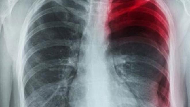 Đau xương sườn là dấu hiệu của những vấn đề về sức khỏe nguy hiểm này - Ảnh 3.