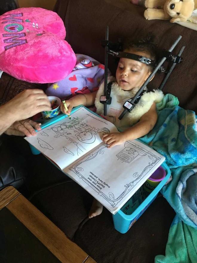 Bé gái bị tổn thương cột sống, tê liệt chỉ vì sai lầm của mẹ khi đặt con vào ghế ngồi ô tô - Ảnh 6.