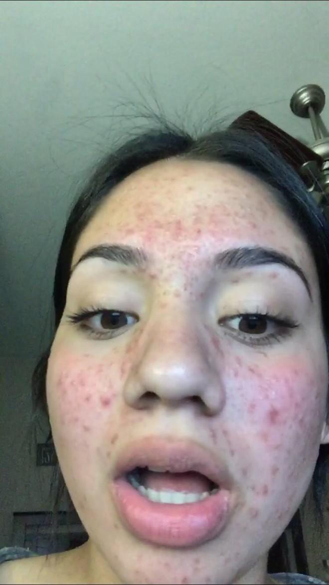 Mặt tan nát vì nhiều mụn, cô nàng này vẫn lấy lại làn da mịn màng không tì vết nhờ bí quyết chăm sóc da siêu rẻ, siêu dễ - Ảnh 1.