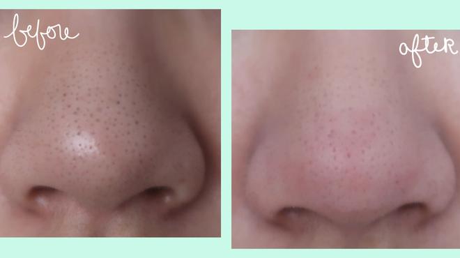 Chỉ với Vaseline và toàn đồ đơn giản, đây là cách khiến mũi láng bóng mịn màng được nhiều cô nàng truyền tai nhau - Ảnh 8.