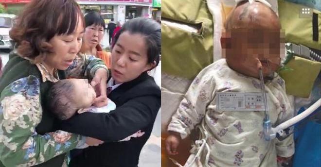 Bé sơ sinh rơi vào hôn mê sau khi bị bé gái 11 tuổi ném quả táo từ tầng 24 chung cư vào đầu - Ảnh 1.