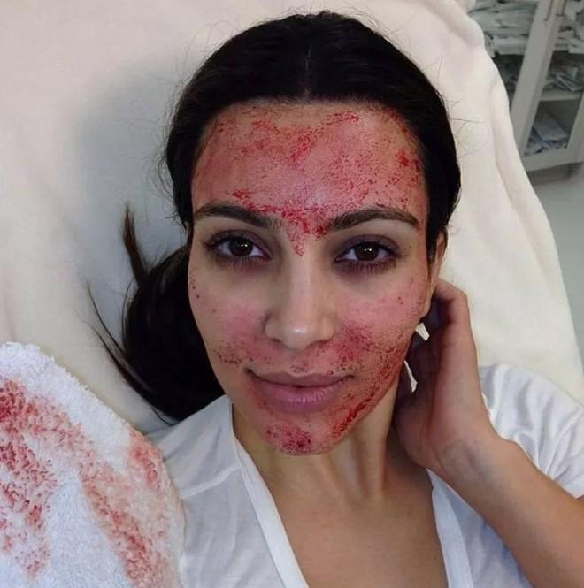 Bất chấp như Kim Kardashian cũng phải cạch đến già sau khi áp dụng liệu pháp làm đẹp ghê rợn này - Ảnh 2.