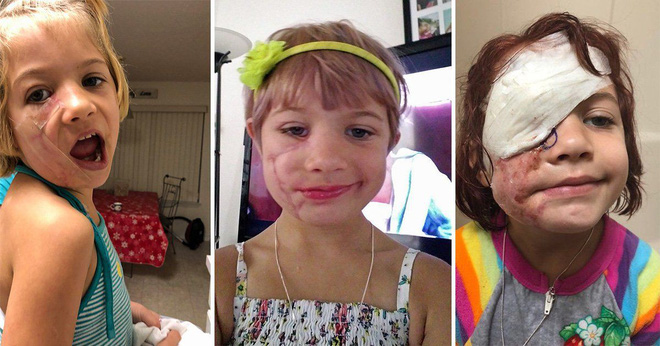 Bị chó cắn đến nát mặt, cô bé 6 tuổi mỗi ngày đều phải chụp ảnh tự sướng để học cách chấp nhận diện mạo mới của mình - Ảnh 2.