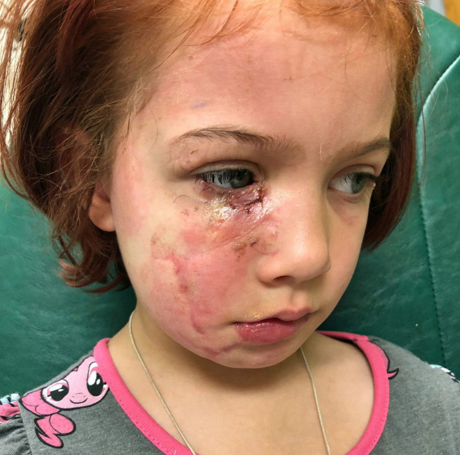 Bị chó cắn đến nát mặt, cô bé 6 tuổi mỗi ngày đều phải chụp ảnh tự sướng để học cách chấp nhận diện mạo mới của mình - Ảnh 3.