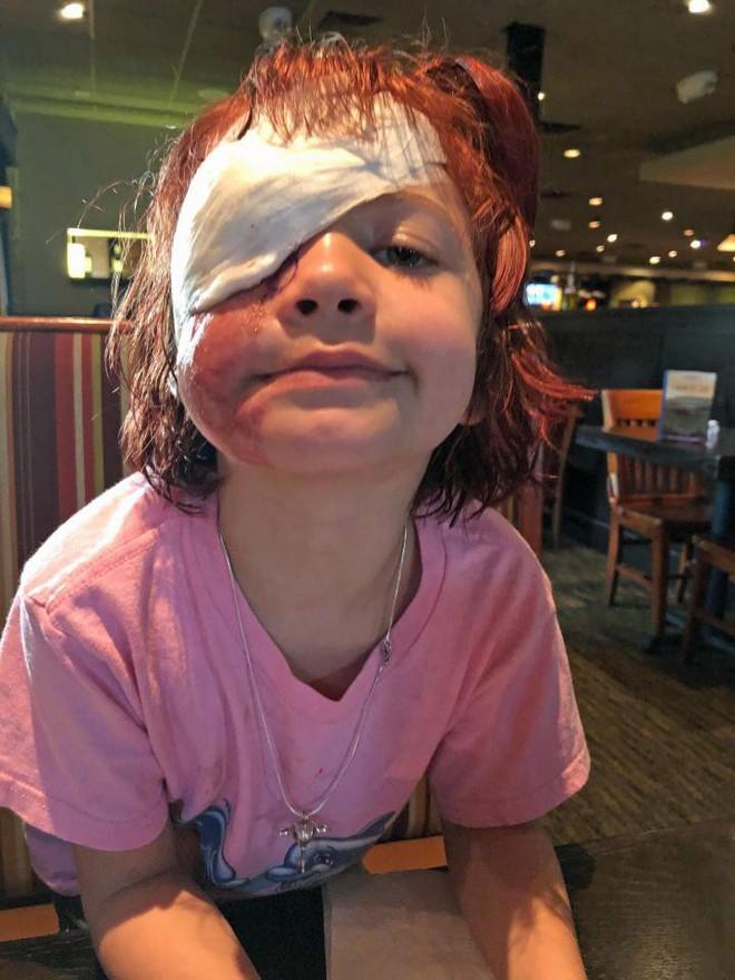 Bị chó cắn đến nát mặt, cô bé 6 tuổi mỗi ngày đều phải chụp ảnh tự sướng để học cách chấp nhận diện mạo mới của mình - Ảnh 5.