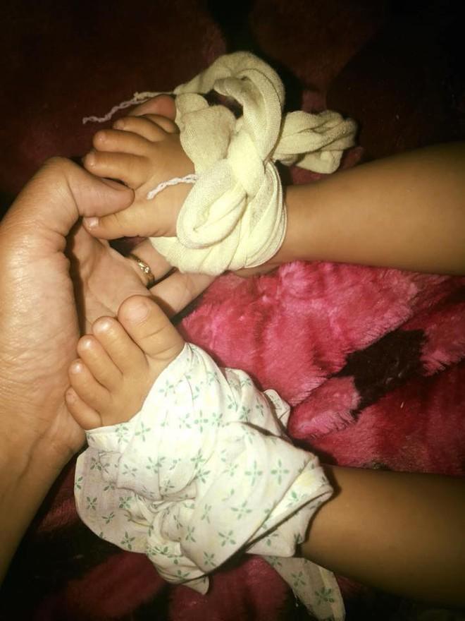 Các mẹ rầm rộ chia sẻ mẹo hạ sốt trị ho cho con bằng cách buộc chanh vào bàn chân, bác sĩ nói gì? - Ảnh 2.