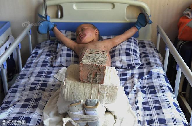 Xót xa chuyện người đàn ông bị vợ bỏ rơi, mỗi ngày dùng 15kg gạch đè lên chân đứa con 5 tuổi để chữa bỏng - Ảnh 2.