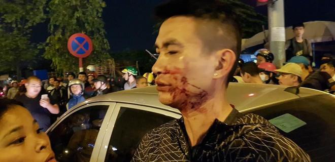 Hà Nội: Va chạm nhỏ, lái xe ô tô nhảy xuống đấm chảy máu mũi xong cố thủ bên trong - Ảnh 2.